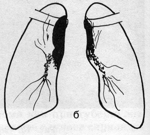 Лимфогранулематоз (б)