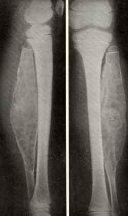 Фиброма мягких тканей причины