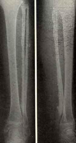 Фиброма мягких тканей причины 44