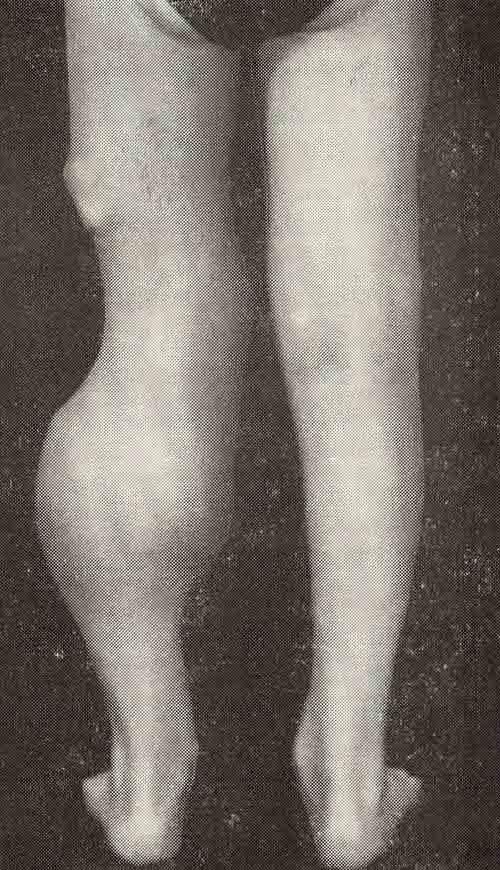 Хондродисплазия фото