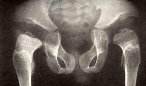 Рентгенограммы тазобедренных и коленных суставов и...