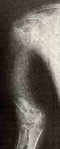 Рентгенограммы правой верхней конечности мальчика 10 лет...