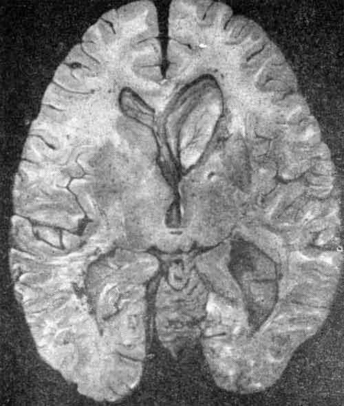 Асимметрия боковых желудочков мозга у взрослого