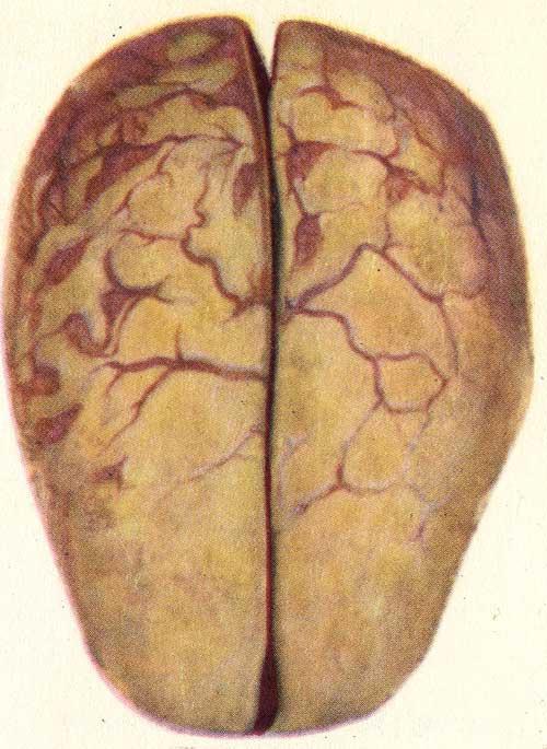 Менингококковая инфекция фото