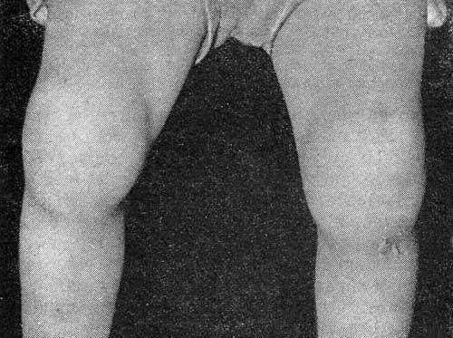 Поражение коленных суставов, преобладание экссудативных явлений.