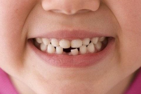 Молочные зубы: лечить или не стоит?