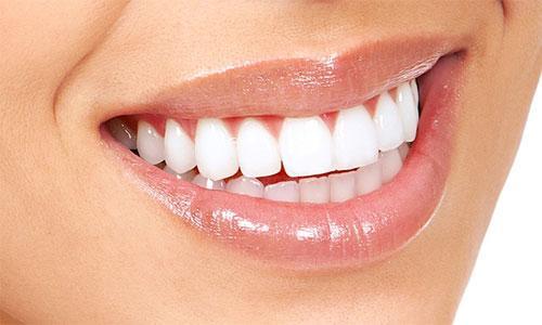 Зубные виниры: особенности изготовления