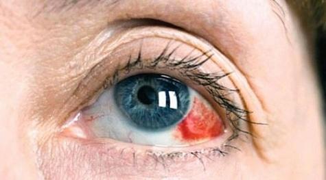Лечение гемофтальмы глаза