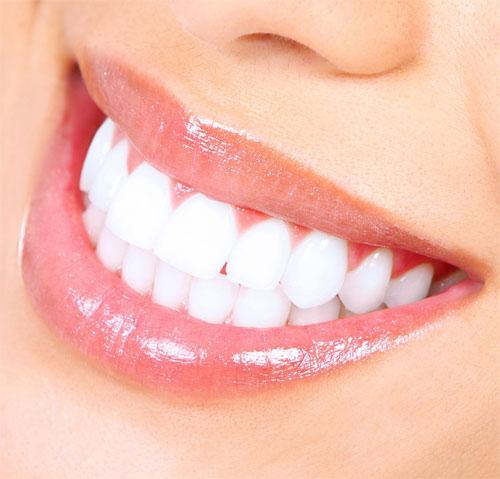 Отбеливание зубов: самые результативные методы