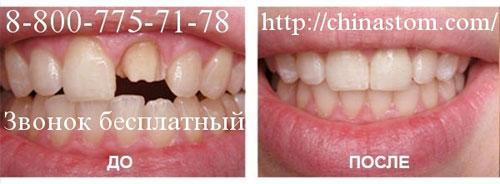 Протезирование зубов в Хэйхэ: стоимость протезирования