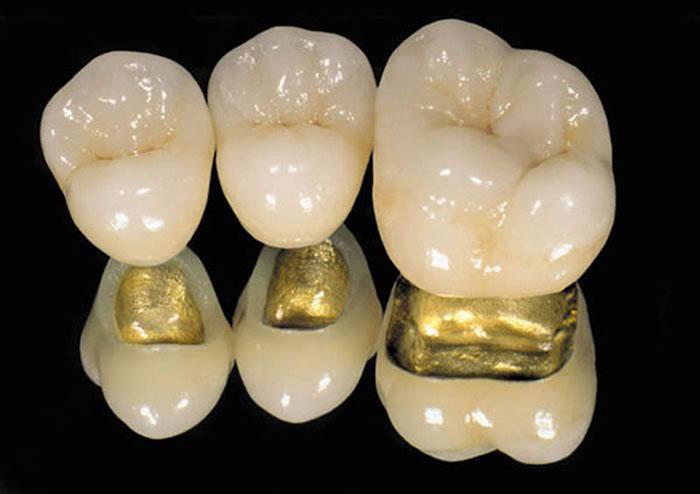 Установка коронки на зуб: как проводится процедура, срок службы стоматологической конструкции