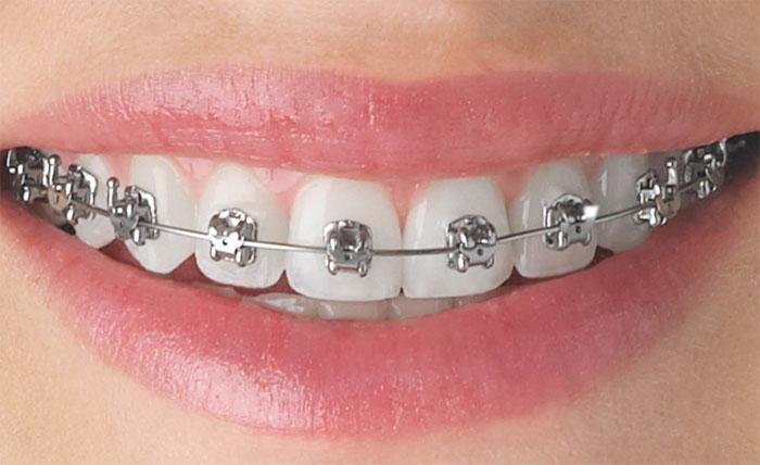 Брекеты и работа ортодонта