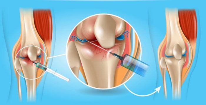 Гиалуроновая кислота как способ лечения суставов