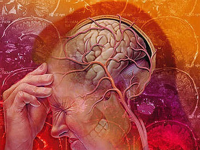 Какие болезни выявляет ангиография сосудов головного мозга?