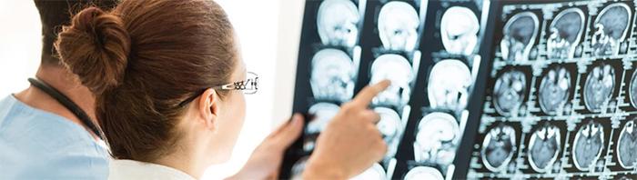 Когда стоит обращаться к неврологу?