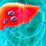 Рак печени: симптомы и возникновение