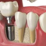 Имплантация зубов: показания и методы восстановления зубного ряда