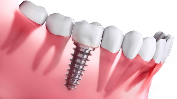 Типы зубных имплантов в современной стоматологии